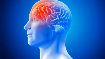 Дисфункция мозговой деятельности – Алковит